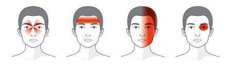 Bolest čelistního kloubu - Diskuze - byroncaspergolf.com