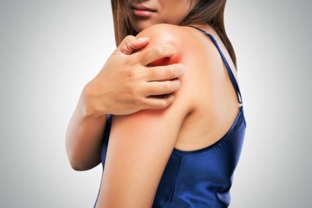 svrbeni ruky kozni ochoreni