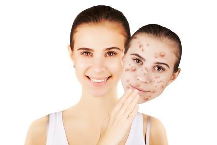 tvář se zdravou pokožkou a tvář se škvrnami