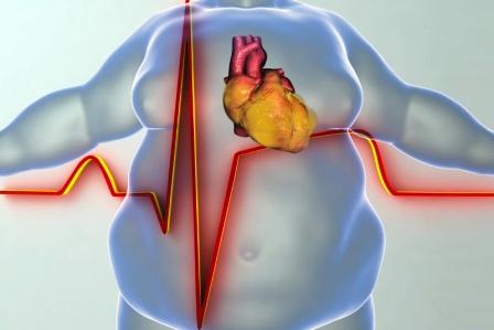 ochoreni srdce u osoby s obezitou pomaha sisak