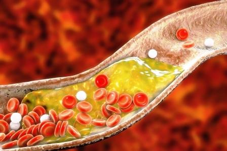 cholesterol v tepne znizuje pohankovy caj