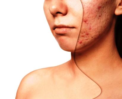 jelsova mast akne